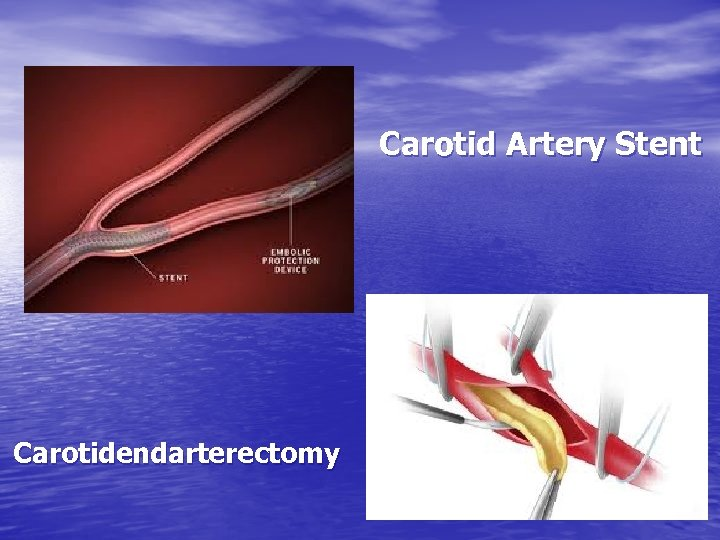 Carotid Artery Stent Carotidendarterectomy
