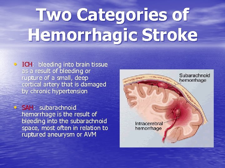 Two Categories of Hemorrhagic Stroke • ICH: bleeding into brain tissue as a result