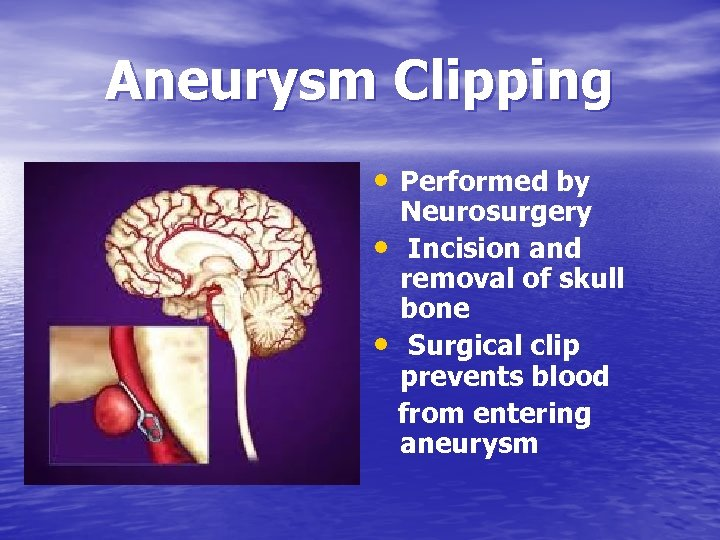 Aneurysm Clipping • Performed by • • Neurosurgery Incision and removal of skull bone