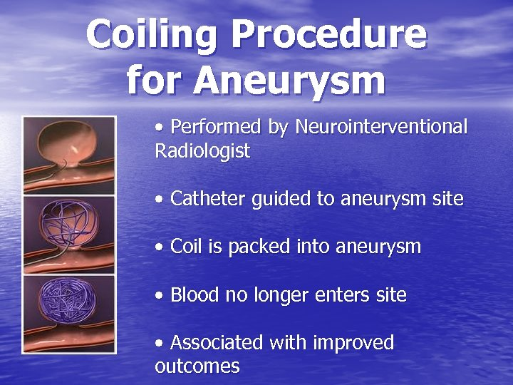 Coiling Procedure for Aneurysm • Performed by Neurointerventional Radiologist • Catheter guided to aneurysm