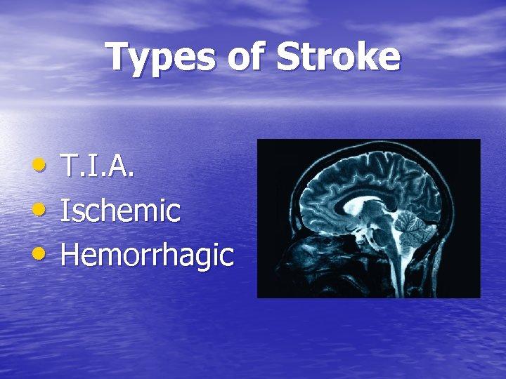 Types of Stroke • T. I. A. • Ischemic • Hemorrhagic