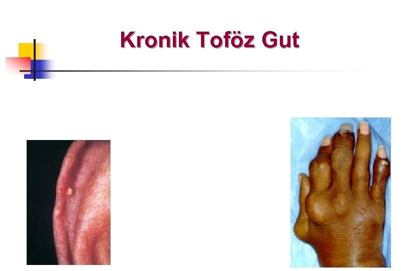 Kronik Toföz Gut