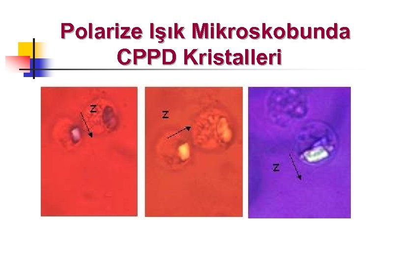 Polarize Işık Mikroskobunda CPPD Kristalleri
