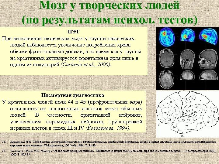Мозг у творческих людей (по результатам психол. тестов) ПЭТ При выполнении творческих задач у