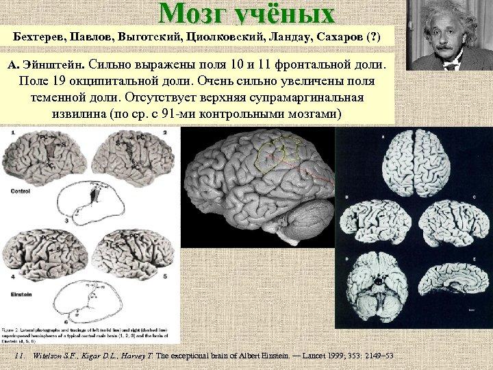 Мозг учёных Бехтерев, Павлов, Выготский, Циолковский, Ландау, Сахаров (? ) А. Эйнштейн. Сильно выражены
