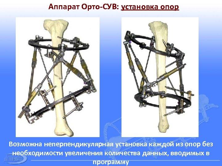 Аппарат Орто-СУВ: установка опор Возможна неперпендикулярная установка каждой из опор без необходимости увеличения количества