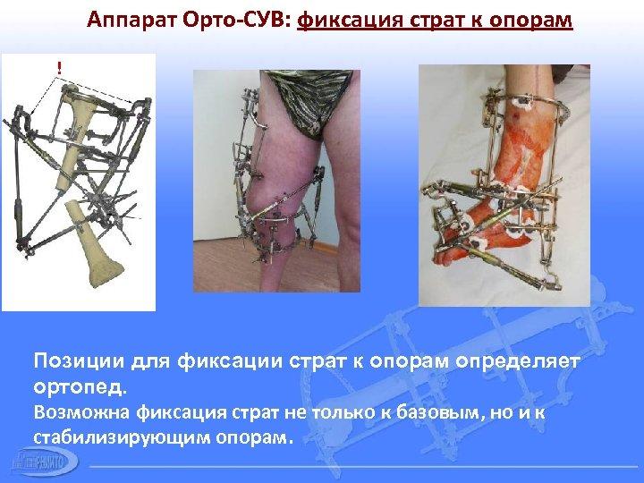 Аппарат Орто-СУВ: фиксация страт к опорам ! Позиции для фиксации страт к опорам определяет