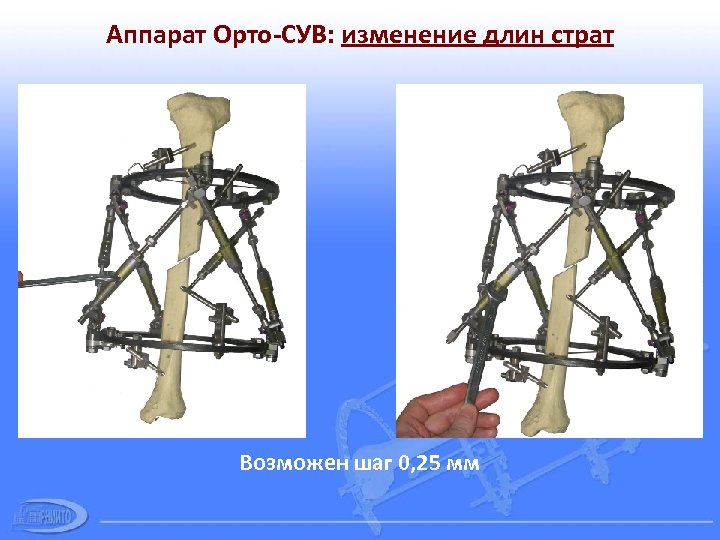 Аппарат Орто-СУВ: изменение длин страт Возможен шаг 0, 25 мм