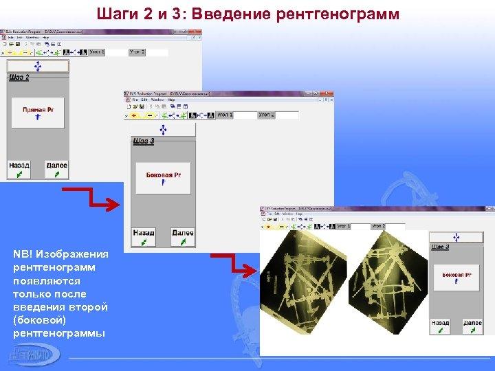 Шаги 2 и 3: Введение рентгенограмм NB! Изображения рентгенограмм появляются только после введения второй