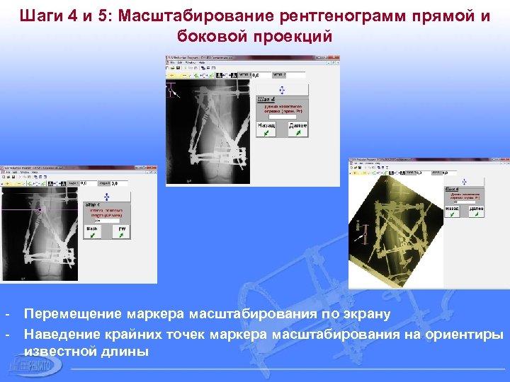 Шаги 4 и 5: Масштабирование рентгенограмм прямой и боковой проекций - Перемещение маркера масштабирования