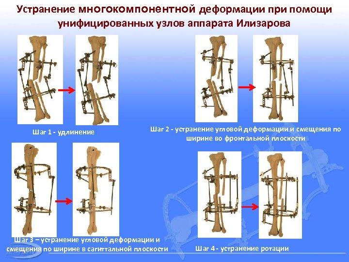 Устранение многокомпонентной деформации при помощи унифицированных узлов аппарата Илизарова Шаг 1 - удлинение Шаг