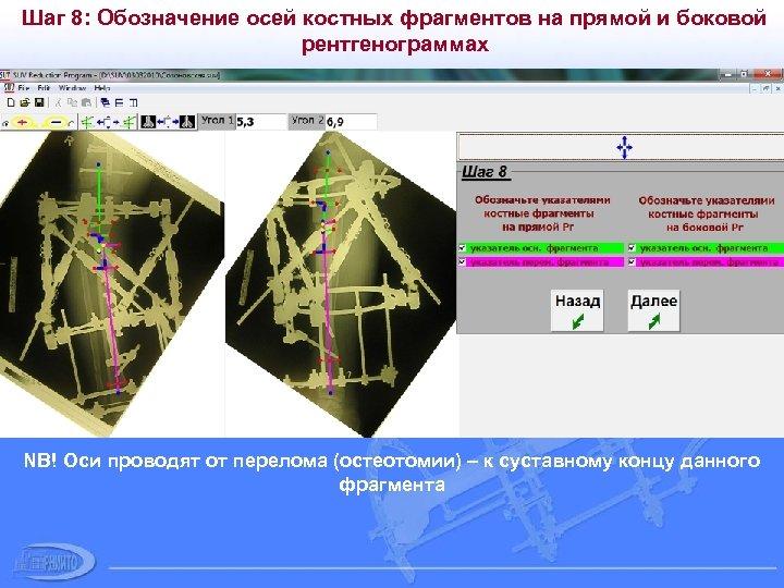Шаг 8: Обозначение осей костных фрагментов на прямой и боковой рентгенограммах NB! Оси проводят
