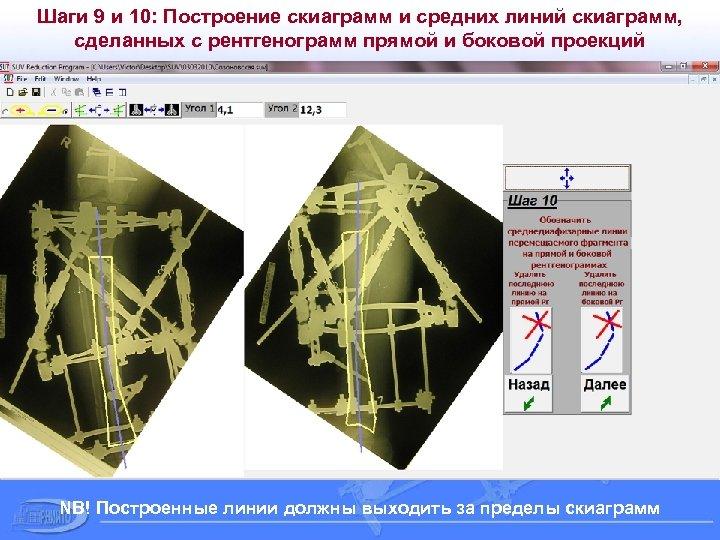 Шаги 9 и 10: Построение скиаграмм и средних линий скиаграмм, сделанных с рентгенограмм прямой