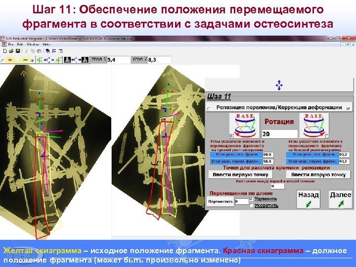 Шаг 11: Обеспечение положения перемещаемого фрагмента в соответствии с задачами остеосинтеза Желтая скиаграмма –