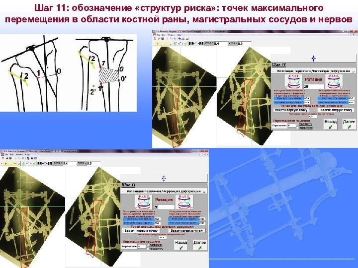 Шаг 11: обозначение «структур риска» : точек максимального перемещения в области костной раны, магистральных