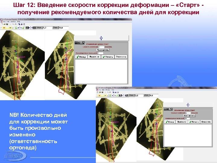 Шаг 12: Введение скорости коррекции деформации – «Старт» получение рекомендуемого количества дней для коррекции