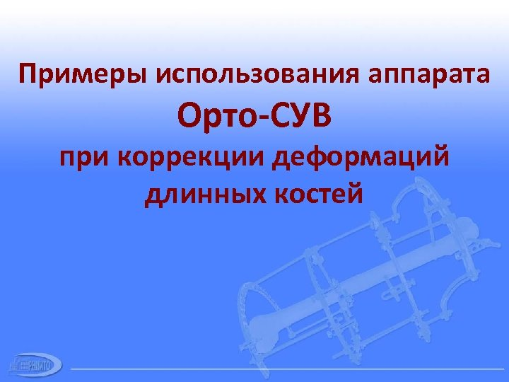 Примеры использования аппарата Орто-СУВ при коррекции деформаций длинных костей