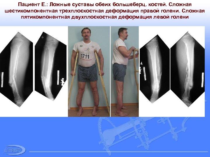 Пациент Е. : Ложные суставы обеих большеберц. костей. Сложная шестикомпонентная трехплоскостная деформация правой голени.