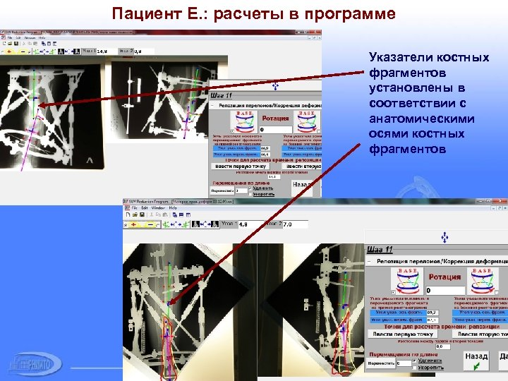 Пациент Е. : расчеты в программе Указатели костных фрагментов установлены в соответствии с анатомическими
