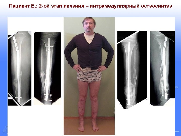 Пациент Е. : 2 -ой этап лечения – интрамедуллярный остеосинтез