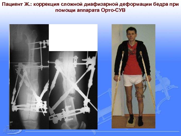 Пациент Ж. : коррекция сложной диафизарной деформации бедра при помощи аппарата Орто-СУВ