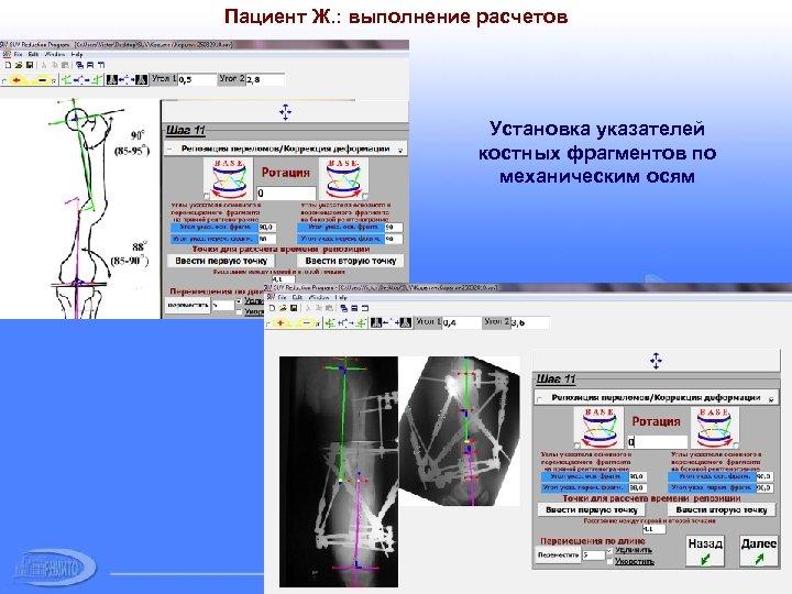 Пациент Ж. : выполнение расчетов Установка указателей костных фрагментов по механическим осям