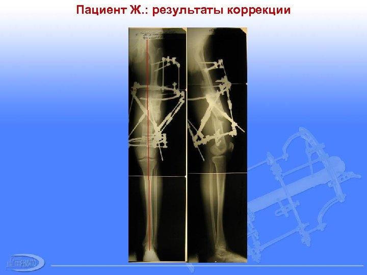 Пациент Ж. : результаты коррекции