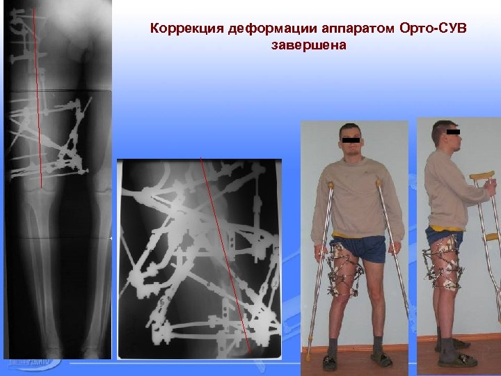Коррекция деформации аппаратом Орто-СУВ завершена