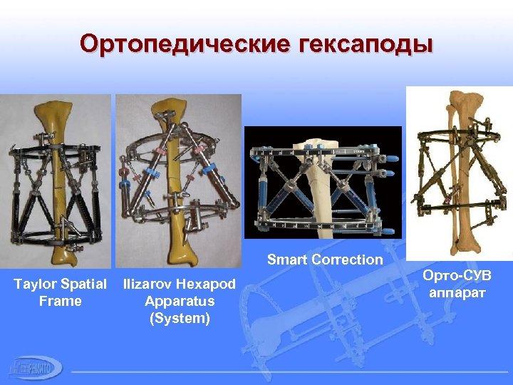 Ортопедические гексаподы Smart Correction Taylor Spatial Frame Ilizarov Hexapod Apparatus (System) Орто-СУВ аппарат