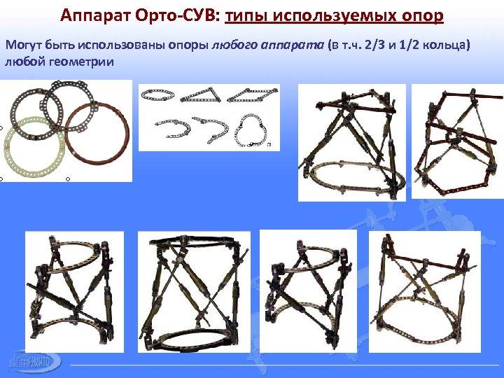Аппарат Орто-СУВ: типы используемых опор Могут быть использованы опоры любого аппарата (в т. ч.