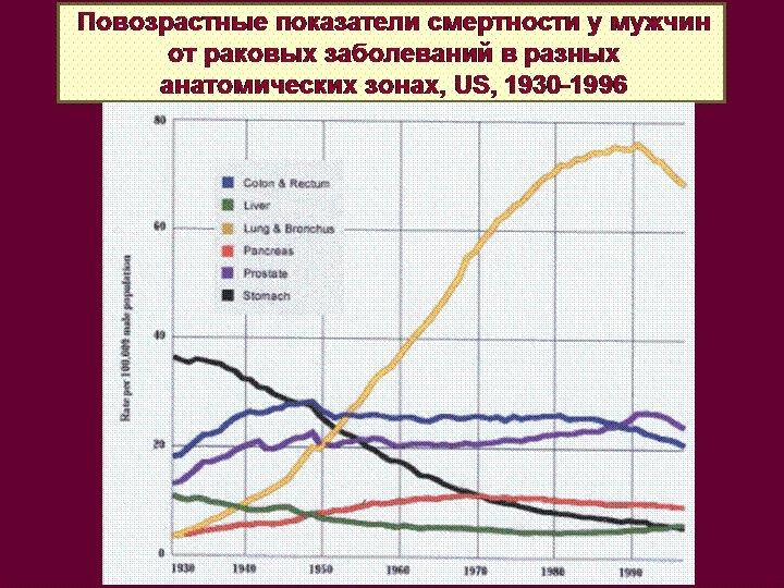 Повозрастные показатели смертности у мужчин от раковых заболеваний в разных анатомических зонах, US, 1930