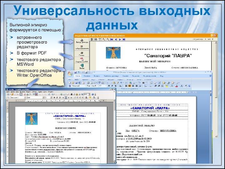 Универсальность выходных данных Выписной эпикриз формируется c помощью: встроенного просмотрового редактора В формат PDF