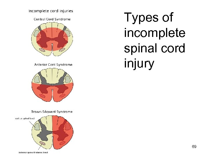 Types of incomplete spinal cord injury 69