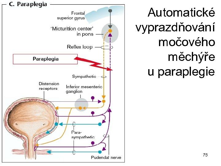 Automatické vyprazdňování močového měchýře u paraplegie 75
