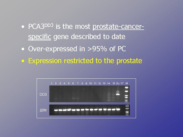 • PCA 3 DD 3 is the most prostate-cancerspecific gene described to date