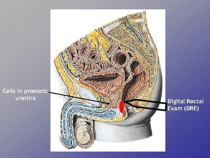 Cells in prostatic urethra Digital Rectal Exam (DRE)