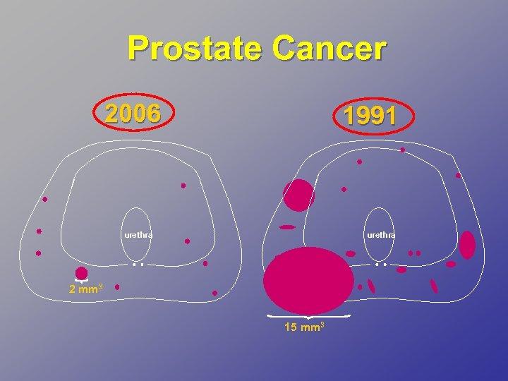Prostate Cancer 2006 1991 urethra 2 mm 3 15 mm 3