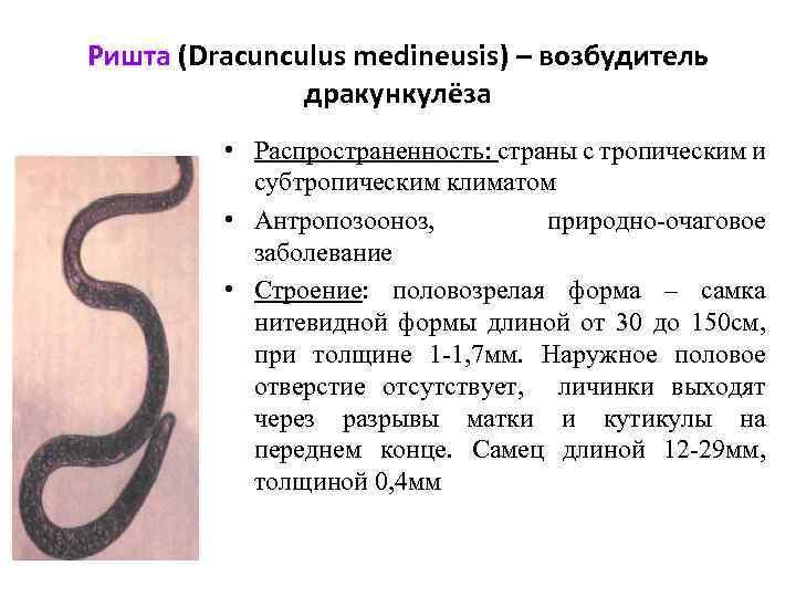 Ришта (Dracunculus medineusis) – возбудитель дракункулёза • Распространенность: страны с тропическим и субтропическим климатом
