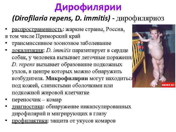 Дирофилярии (Dirofilaria repens, D. immitis) - дирофиляриоз • распространенность: жаркие страны, Россия, в том