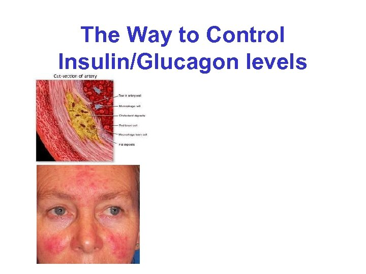 The Way to Control Insulin/Glucagon levels