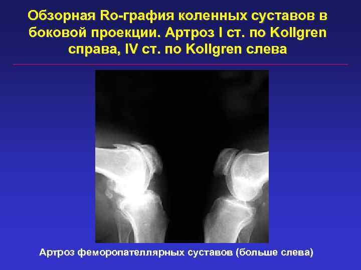 Обзорная Ro-графия коленных суставов в боковой проекции. Артроз I ст. по Kollgren справа, IV