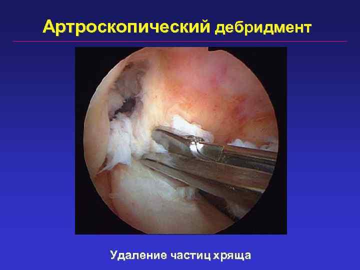 Артроскопический дебридмент Удаление частиц хряща