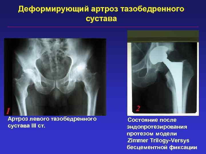 Деформирующий артроз тазобедренного сустава Артроз левого тазобедренного сустава III ст. Состояние после эндопротезирования протезом