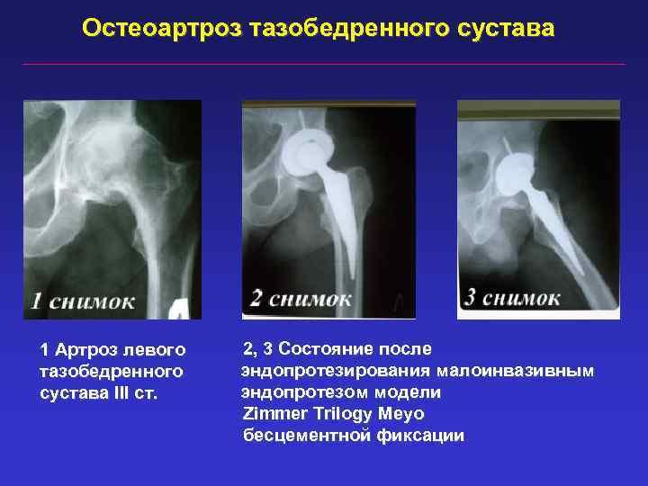 Остеоартроз тазобедренного сустава 1 Артроз левого тазобедренного сустава III ст. 2, 3 Состояние после