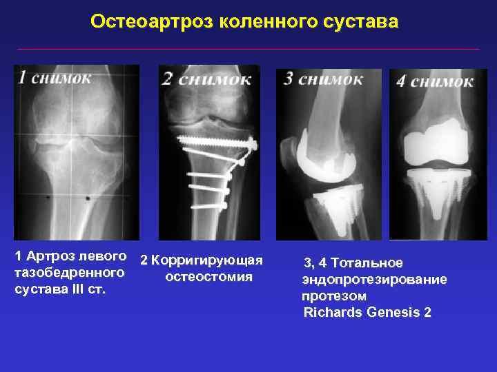 Остеоартроз коленного сустава 1 Артроз левого 2 Корригирующая тазобедренного остеостомия сустава III ст. 3,