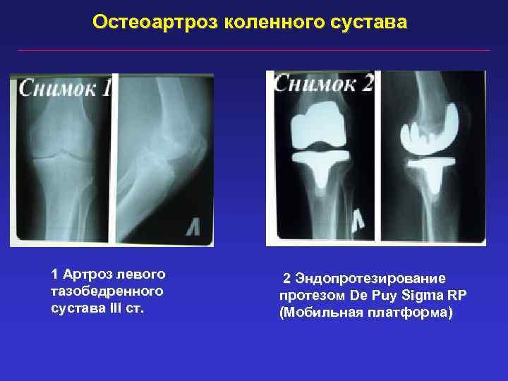 Остеоартроз коленного сустава 1 Артроз левого тазобедренного сустава III ст. 2 Эндопротезирование протезом De