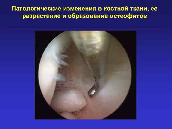 Патологические изменения в костной ткани, ее разрастание и образование остеофитов