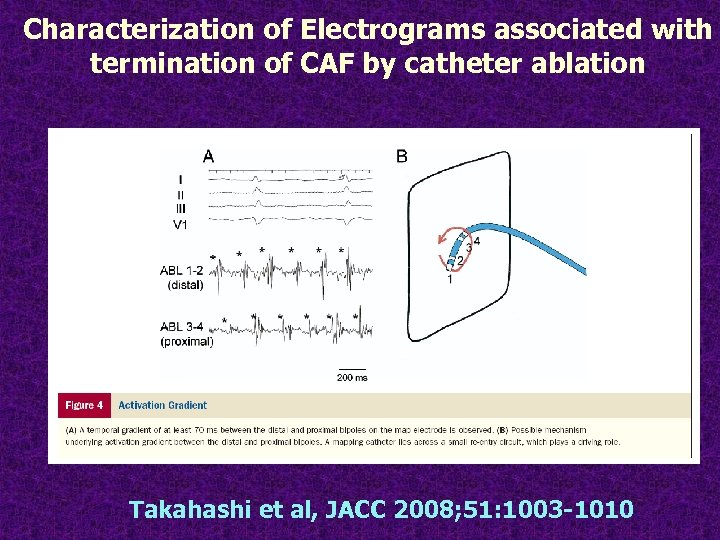 Characterization of Electrograms associated with termination of CAF by catheter ablation Takahashi et al,