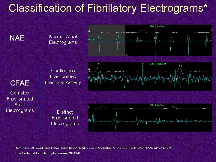 Classification of Fibrillatory Electrograms* NAE CFAE Complex Fractionated Atrial Electrograms Normal Atrial Electrograms Continuous