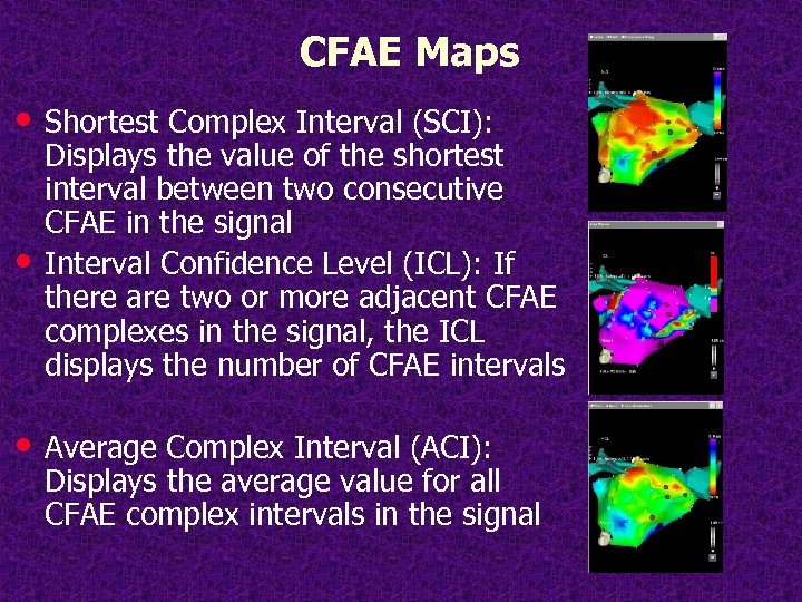 CFAE Maps • Shortest Complex Interval (SCI): • Displays the value of the shortest